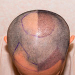 12 Things to Consider After Hair Transplantation