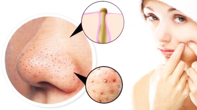 blackheads acne